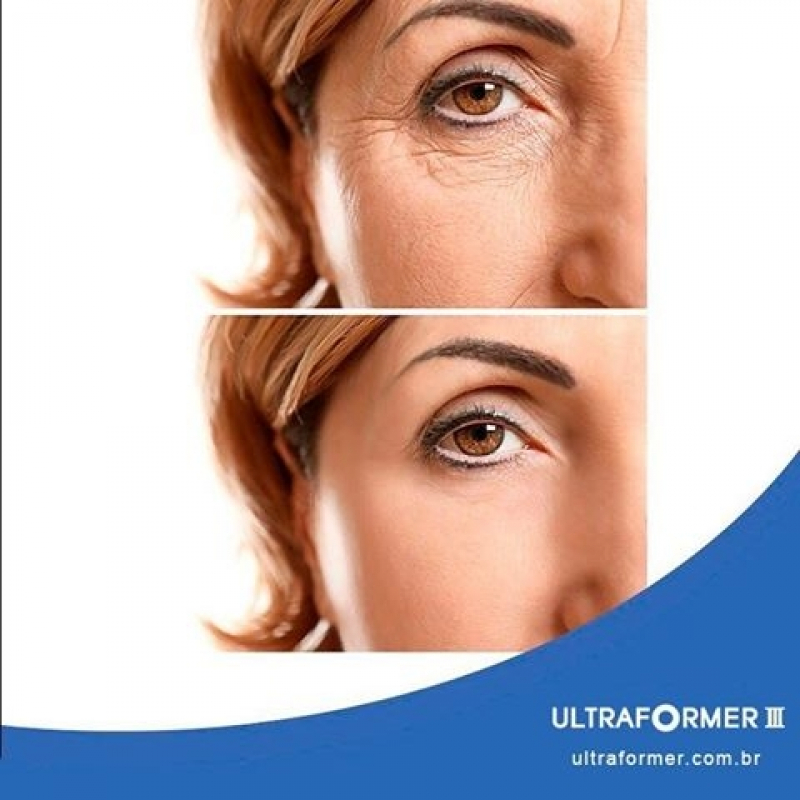 Ultrassom Microfocado Flacidez Facial